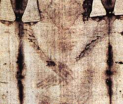 Front part of the Shroud, real appearance, contrast enhanced to show the detail better. The left part of the body is on the left of the image. The left hand therefore rests on the right hand. The arms which were spread out, upwards and backwards, fixed by immediate rigor mortis, had to be forced forward and crossed on the pubis. The fingers of the left hand have therefore had to be bent in order to hook over the cubital edge of the right hand, thus making it possible to maintain this position. (15752 bytes)