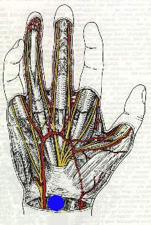 "Anatomical drawing of a right hand, showing the vasculo-nervous bundles. The Destot Space is highlighted by a blue dot. This naturally occurring space is ""perfect"" for the crucifixion nails, as it is surrounded by three supporting bones which need not be broken. In addition, the nail rests against the strong anterior annular ligament of the carpus. (20745 bytes)"