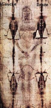 Part of the Shroud showing the front of the body. This is a photo of the Shroud as it appears, that is, as a photographic negative ( but the optical contrast has been boosted to show the details better), and this gives it this strange appearance. (18062 bytes)
